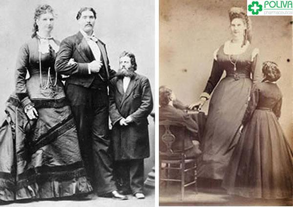 """Anna Swan là người sở hữu kích thước """"cô bé"""" lớn nhất thế giới."""