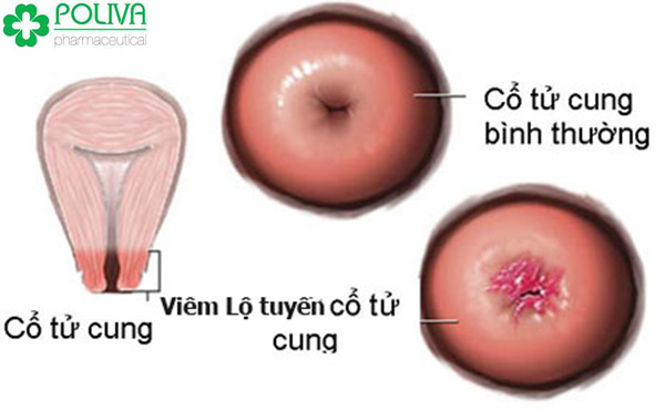 Bệnh viêm lộ tuyến tử cung