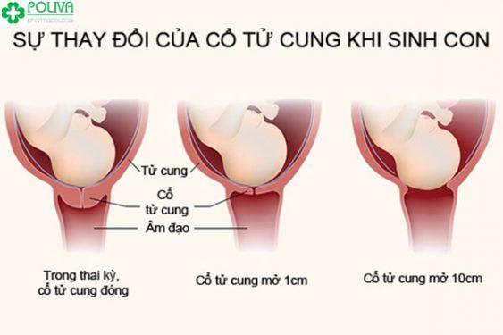 Sự thay đổi của cổ tử cung để chuẩn bị cho quá trình sinh nở