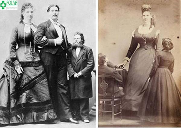 """Anna Swan là người sở hữu kích thước """"cô bé"""" lớn nhất thế giới"""