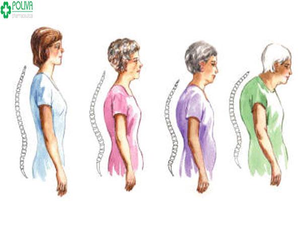 Bệnh loãng xương xuất hiện ở tuổi già.