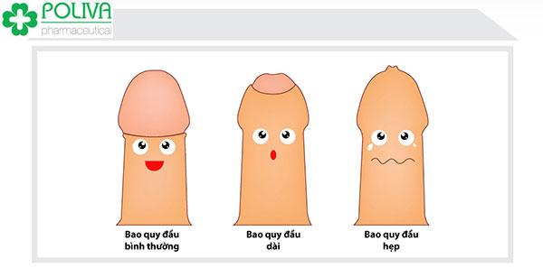Bao quy đầu ảnh hưởng như thế nào đến sức khỏe sinh lý nam