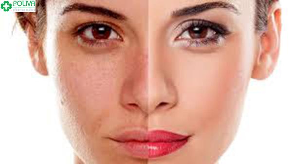 Mang thai sắc tố da thay đổi khiến da bạn bị nám, sạm trông thấy