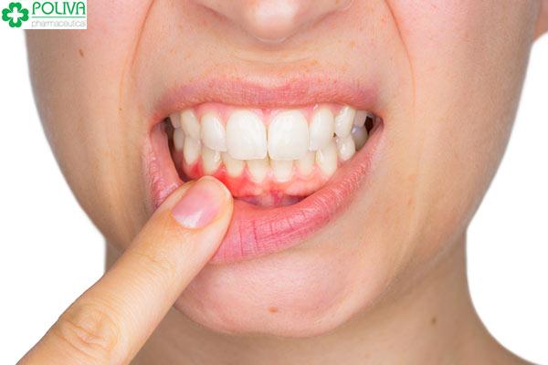 Phụ nữ mang thai cũng rất hay gặp rắc rối về răng miệng