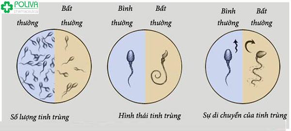 Dấu hiệu nhận biết tinh trùng yếu, tinh trùng ít, tinh trùng dị dạng