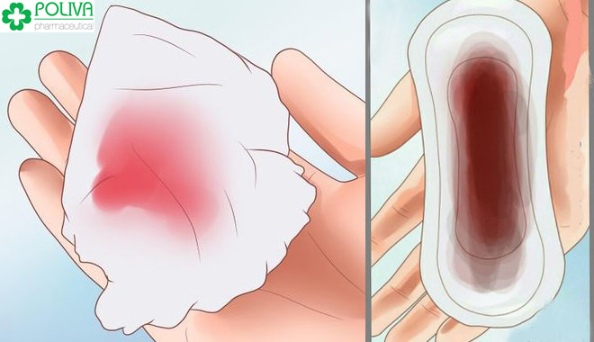 So sánh lượng máu kinh, số lượng băng vệ sinh sử dụng để biết có phải mắc kinh nguyệt ít không.