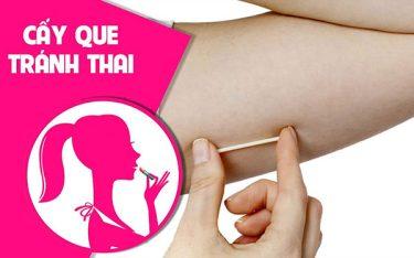 Que cấy tránh thai là gì, liệu có an toàn khi dùng không?