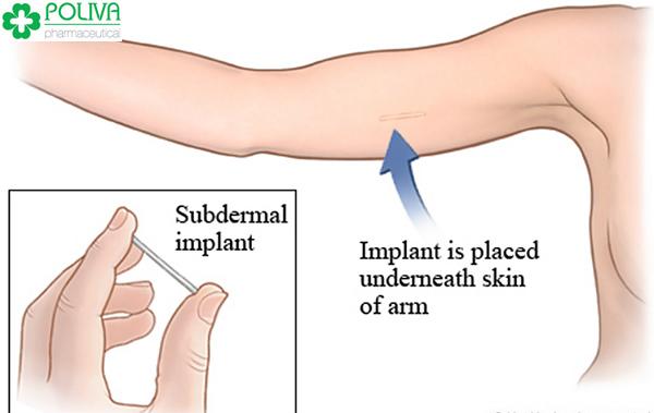 Que cấy tránh thai sẽ được cấy vào vùng tay dưới da (thường là ở tay không thuận)