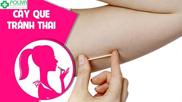 Que cấy tránh thai là một phương pháp kế hoạch hóa gia đình mới ở Việt Nam
