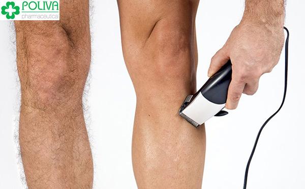 Nhiều hay ít lông chân phụ thuộc vào nhiều yếu tố