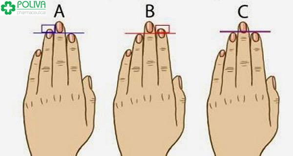 """Đàn ông có ngón tay đeo nhẫn dài hơn ngón trỏ cũng được nhận định là giỏi """"quan hệ"""""""