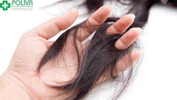 Rụng tóc là hiện tượng phổ biến ở phụ phụ nữ sau sinh