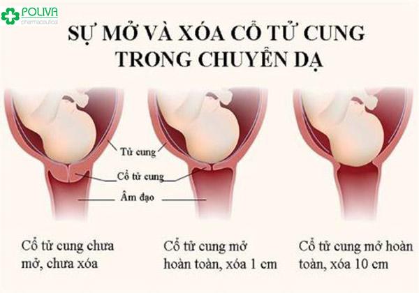 Quy trình cổ tử cung mở khi mẹ bầu chuyển dạ