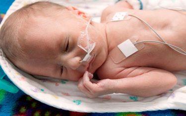 Cách chăm sóc trẻ sinh non chuẩn nhất giúp bé khỏe mạnh, phát triển tốt