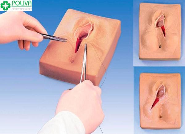 Vết rạch được khâu bằng chỉ tự tiêu nên sẽ sớm lành sau 2-3 tuần.