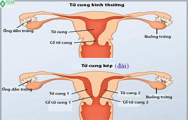 Tử cung đôi được chia thành phần nhưng lại cùng chung một cổ tử cung có nối với âm đạo