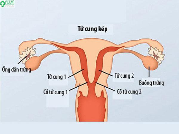 Tử cung đôi là gì? Liệu có phải bị tử cung đôi khó có thai?