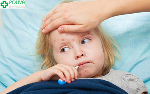 Trẻ bị sởi thường có triệu chứng sốt cao.