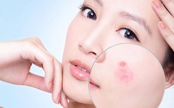 Tìm hiểu các bước skincare cho da mụn mỗi ngày