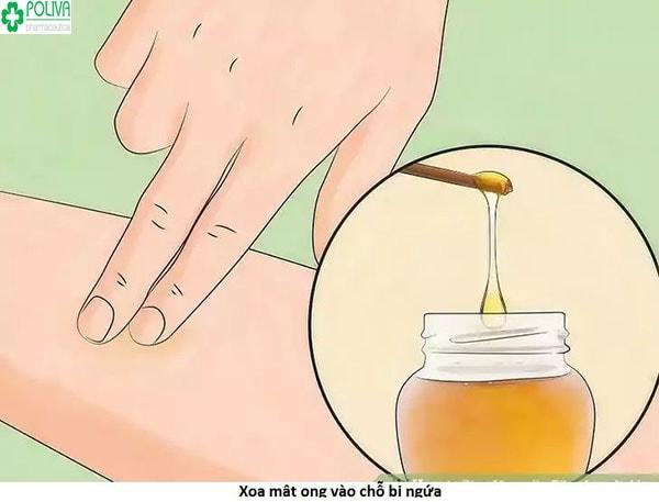 Cách chữa vết muỗi đốt bằng mật ong nhanh chóng, đơn giản
