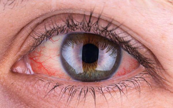 Hiện tượng đau mắt đỏ bao lâu thì khỏi? Đau mắt đỏ kiêng gì?