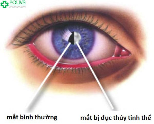 Tất cả các bệnh về mắt và triệu chứng