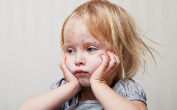 Trẻ bị sởi tắm lá gì để nhanh khỏi bệnh?