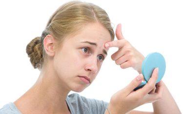 Rối loạn nội tiết tố nữ tuổi dậy thì có đáng lo không?
