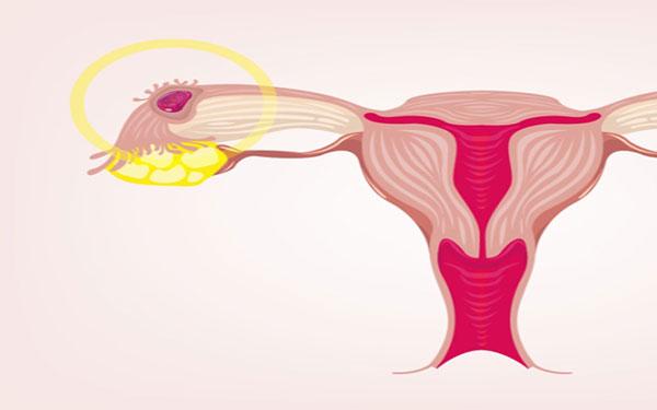 Mang thai ngoài tử cung bao lâu thì phát hiện? 1 tuần, 2 tuần hay 1 tháng?