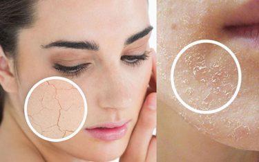 Trị dứt điểm da mặt tróc vảy trắng tại nhà nhanh chóng và hiệu quả