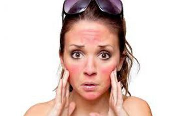 Bốc hoả nóng mặt – bệnh bốc hoả lên đầu cách điều trị dứt điểm