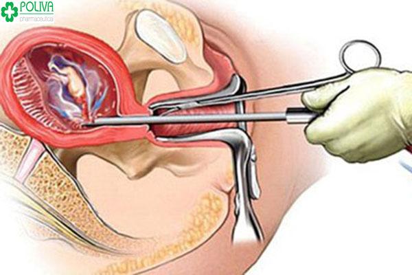 Hút thai 5 tuần tuổi có đau không áp dụng cho đối tượng nào?
