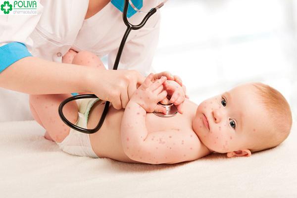 bệnh chân tay miệng ở trẻ nhỏ