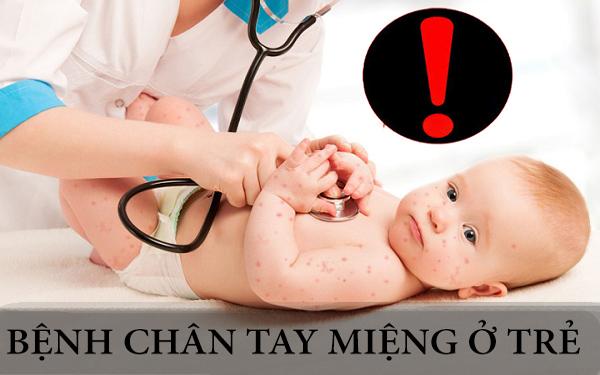 Bệnh tay chân miệng ở trẻ nhỏ và những nguy hiểm tiềm ẩn khó lường