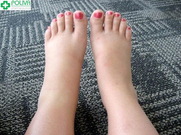 Cận ngày sinh chân bị phù to