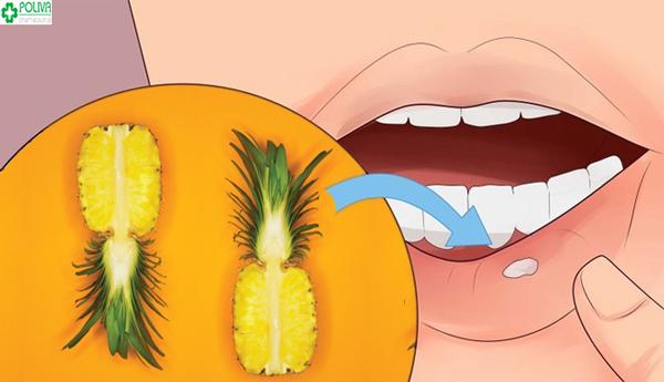 cách chữa nhiệt miệng tận gốc