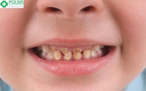 Trẻ uống sữa ban đêm dễ khiến răng bị sâu do không được vệ sinh răng miệng
