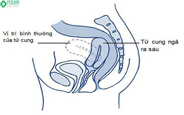Cấu tạo của tử cung ngả sau
