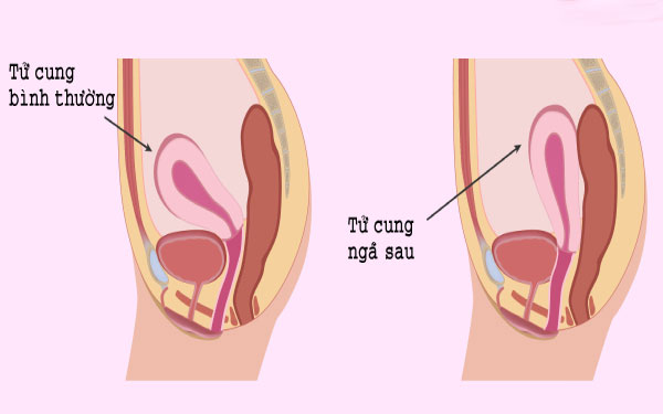 Tư thế tử cung trung gian là gì, có dễ thụ thai hay không?
