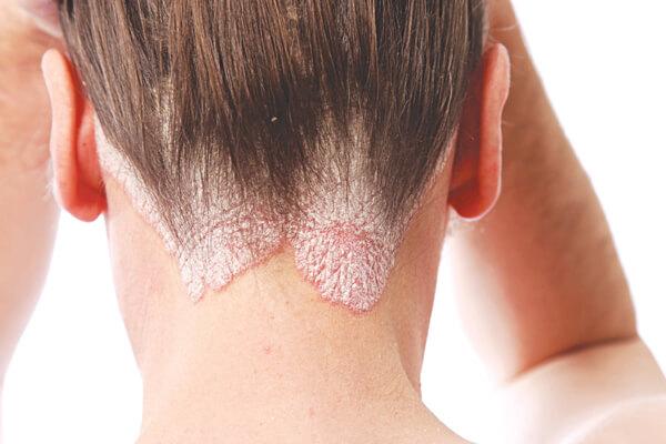 Vệ sinh lược chải tóc giảm các nguy cơ bệnh về da đầu và hạn chế bị gãy rụng tóc